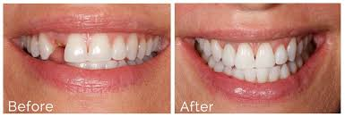 Before and After Dental Implants | Pan Dental Care in Melrose, MA