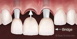 Dental Implants for Multiple Teeth from Pan Dental Care in Melrose, MA