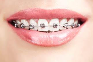 Orthodontic Consultations from Pan Dental Care in Melrose, MA