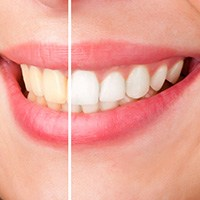 Teeth Whitening from Pan Dental Care in Melrose, MA